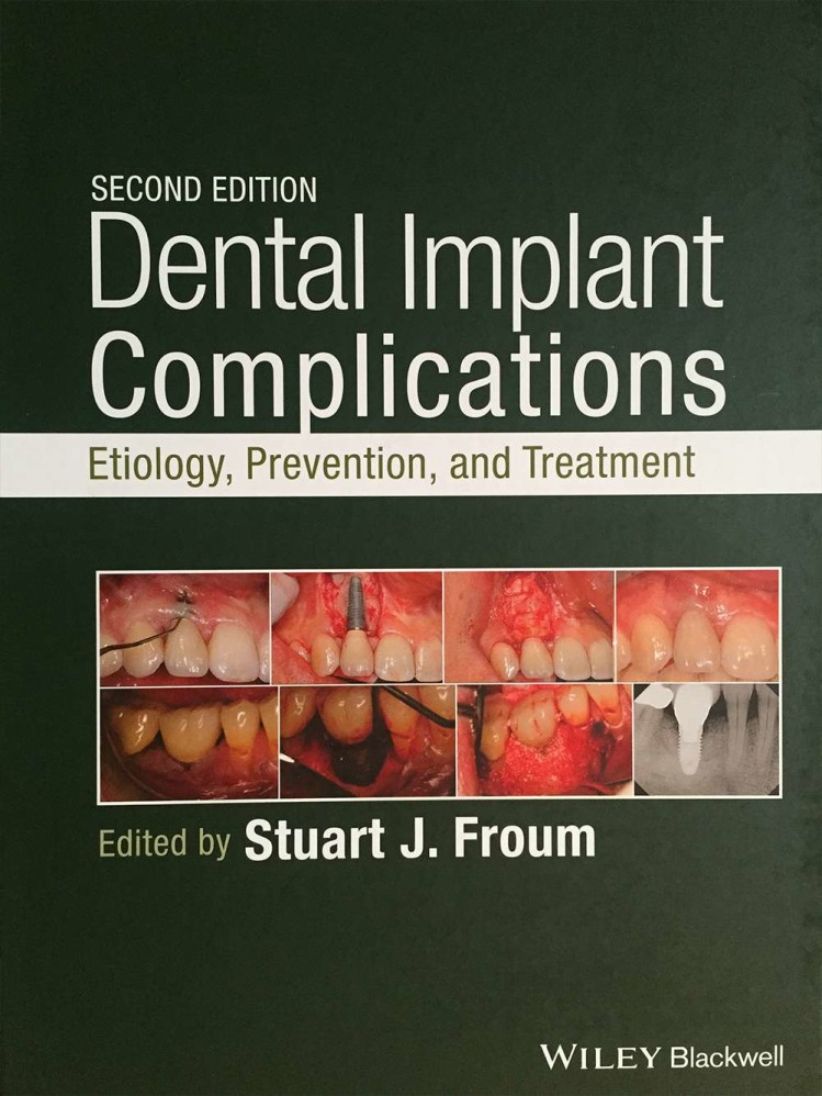 ff_dental_implant_complications
